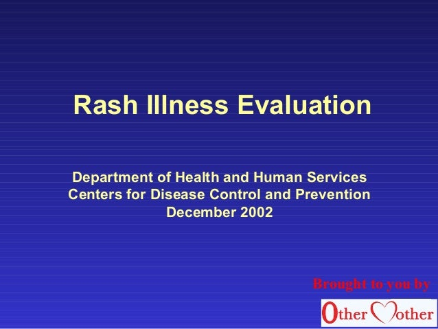Rash Illness Evaluation Department of Health and Human Services Centers for Disease Control and Prevention December 2002 B...