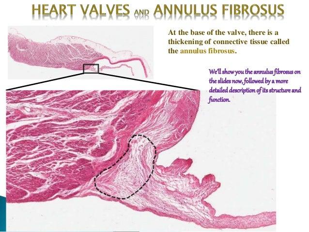Descripition of heart and purkinje fibres