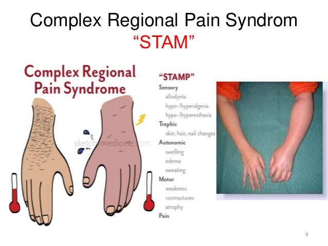 Complex Regional Pain Syndrome C R P S