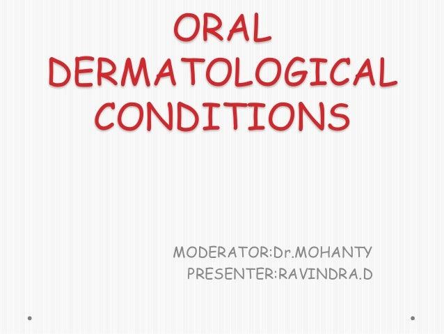 ORAL DERMATOLOGICAL CONDITIONS  MODERATOR:Dr.MOHANTY PRESENTER:RAVINDRA.D