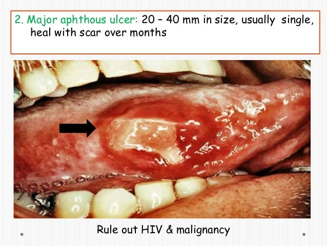 steroid mouth rinse for geographic tongue