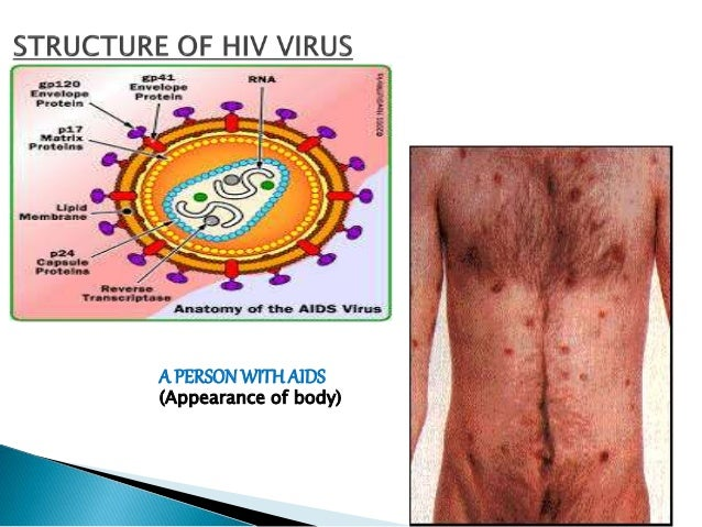 Major Health Issues in India: HIV/AIDS & CANCER IN INDIA...