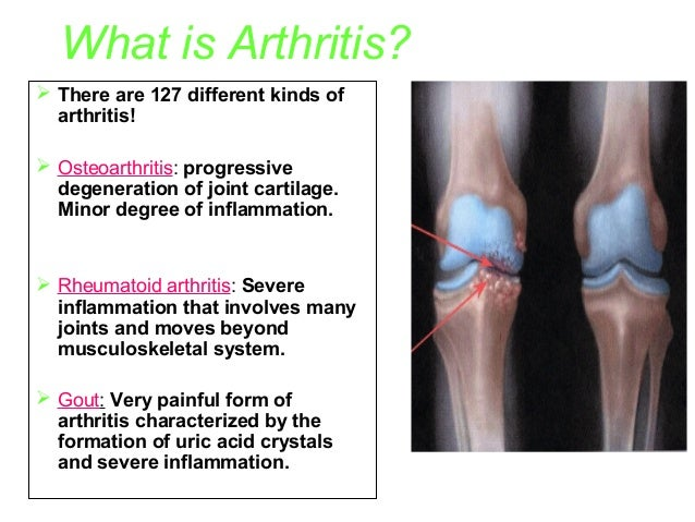 What is Arthritis?  There are 127 different kinds of arthritis!  Osteoarthritis: progressive degeneration of joint carti...