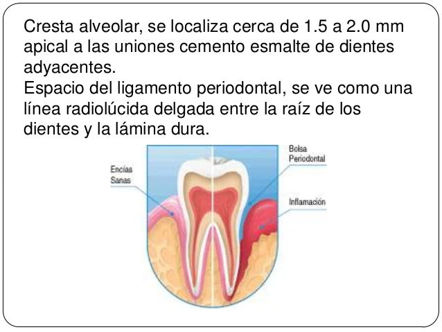 Distraccion Alveolar moreover AEHv besides Bone Grafting furthermore Absceso Periodontal in addition Watch. on perdida osea alveolar