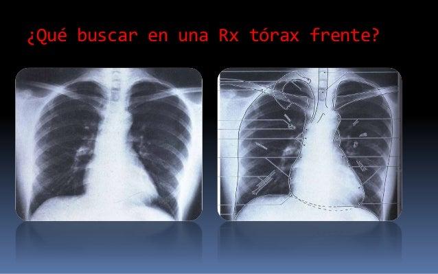 RAYOS X TORAX EPUB