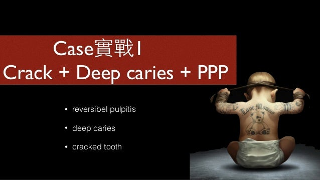 Enamel margin Dentin sealing Resin overlay 1mm 2mm