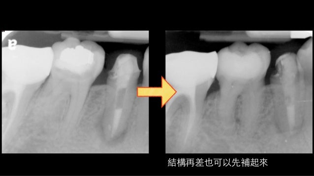 Before After, follow 3 weeks Periapical RL…healed!?