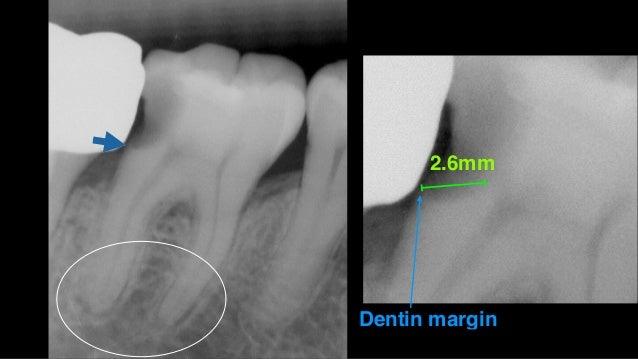• 深度蛀⽛牙不必完全挖乾淨,但要建⽴立良好marginal sealing • 分階段治療,期間變化有助更準確的最後評估 • Sealing才是補⽛牙的重點,bonding不是 • Enamel margin是sealing的關鍵 • 裂⿒齒...