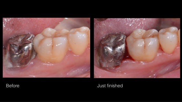 Complete excavation Stepwise excavation Partial caries removal  Indirect pulp capping Direct pulp capping Partial Pulpot...