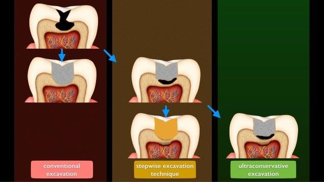6 months f/u stepwise excavation technique affected dentin remineralized dentin GI application Bjørndal L, 2002