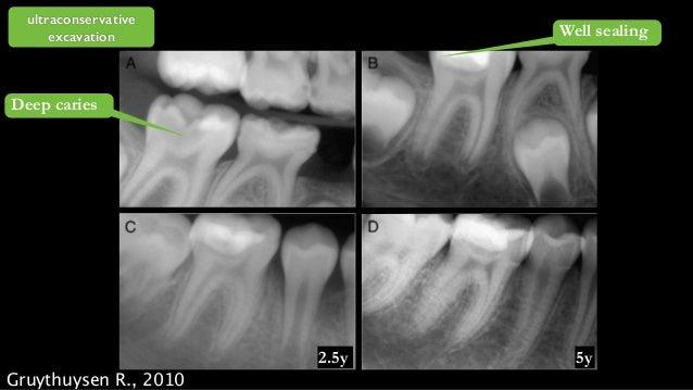 primary dentin secondary dentin enamel tertiary dentin