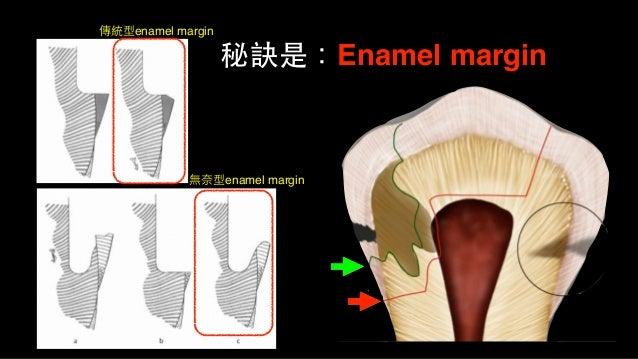 • 若深度蛀⽛牙危及⽛牙髓,現今教科書的建議步驟: 階段1、 1, 先評估是否可直接OD復形(若⼀一定要crwon,則另外考量) 2, 若可,靠近pulp部分蛀⽛牙不要全拿掉 3, 建⽴立完整乾淨的窩洞邊緣 4, GIC或RMGI先補...