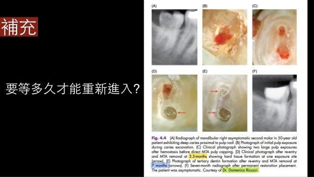 裂⿒齒症的 治療對策