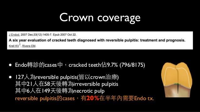 Indirect Onlay coverage • resin onlay黏著後進⾏行觀察 第⼀一週:88.37%不會疼痛,4.65%對冷及咬合敏感 第四週:93.02%不會疼痛,2.32%對冷及咬合敏感 共6.89%需要根管治療 • r...