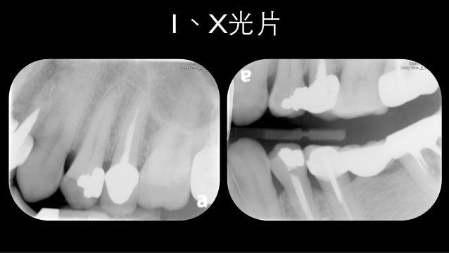 0-2.5mm Caries margin 2nd, 3rd dentin…