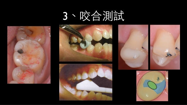 step 1  cracked tooth biting pain(++) biting pain(-) test with direct composite coverage without bonding