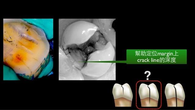 Dentin要視為不均質的有機活組織 性質因不同位置⽽而有不同