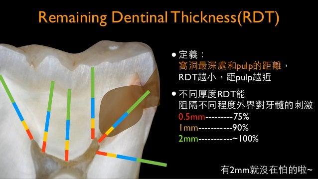 Deep dentin選何種bonding? 但不論⽤用何種bonding, 效果是不太好的… Tay FR, 2004