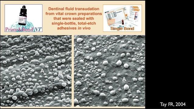 MTA需多厚才能sealing? ⽤用三種⽅方式去填MTA 結果平均dye滲透了1.3mm —>厚度2mm以上的MTA及dentin之間較 能保証sealing