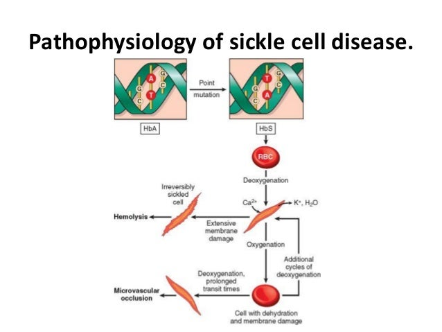 the discussion on sickle cell disease Sickle cell disease can cause significant pain article covers pain mechanism and possible treatments for pain caused by sickle cell disease.