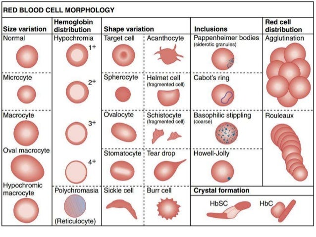 RBC morphology and Disease that may be associated with ...