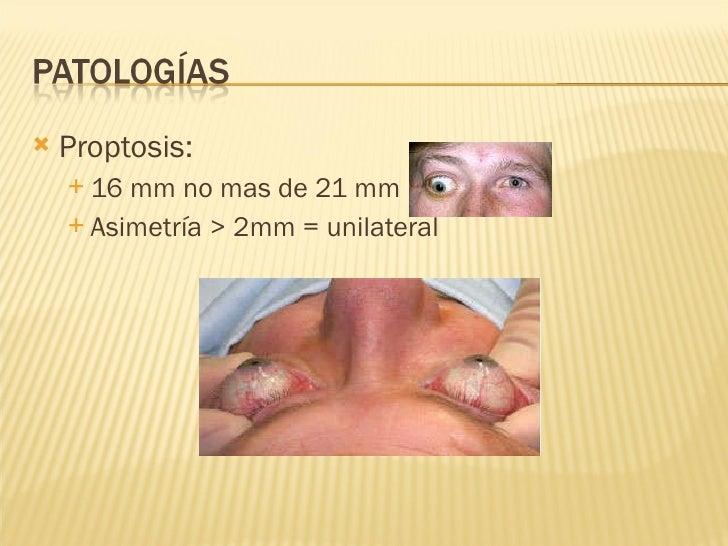 <ul><li>Proptosis:  </li></ul><ul><ul><li>16 mm no mas de 21 mm </li></ul></ul><ul><ul><li>Asimetría > 2mm = unilateral </...