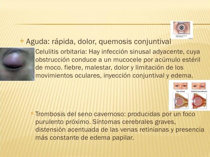 <ul><ul><li>Aguda: rápida, dolor, quemosis conjuntival </li></ul></ul><ul><ul><ul><li>Celulitis orbitaria: Hay infección s...