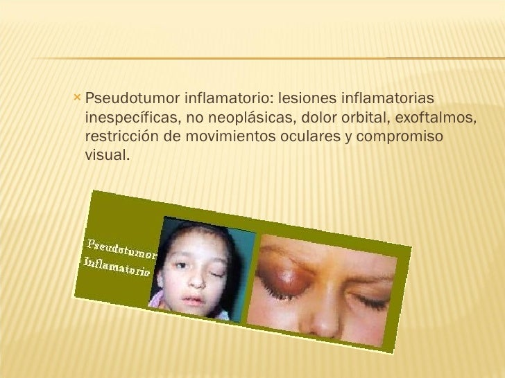 <ul><ul><ul><li>Pseudotumor inflamatorio: lesiones inflamatorias inespecíficas, no neoplásicas, dolor orbital, exoftalmos,...