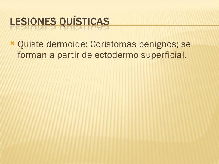<ul><li>Quiste dermoide: Coristomas benignos; se forman a partir de ectodermo superficial.  </li></ul>