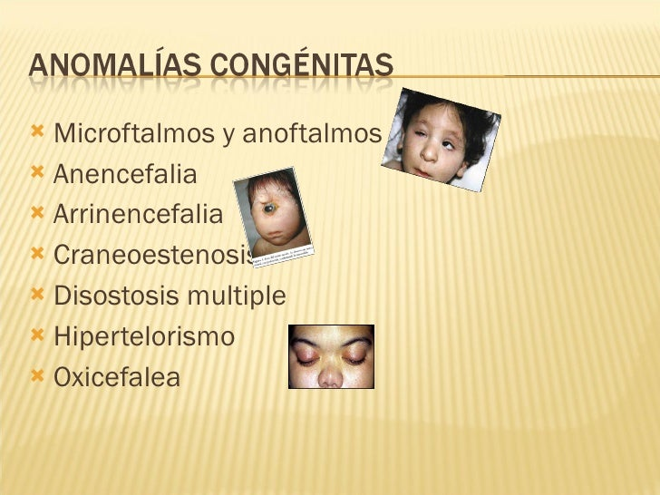 <ul><li>Microftalmos y anoftalmos </li></ul><ul><li>Anencefalia </li></ul><ul><li>Arrinencefalia </li></ul><ul><li>Craneoe...