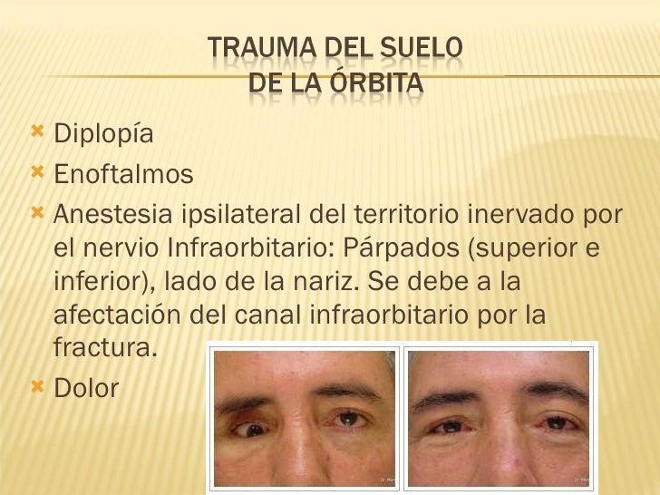 <ul><li>Diplopía </li></ul><ul><li>Enoftalmos </li></ul><ul><li>Anestesia ipsilateral del territorio inervado por el nervi...