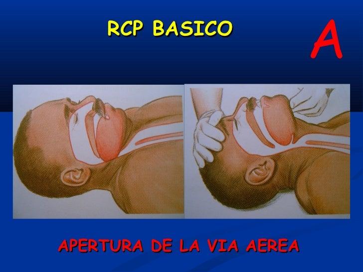 RCP BASICO                                            AAMANIOBRA FRENTE MENTON   MANIOBRA TRACCION MANDIBULAR          APE...