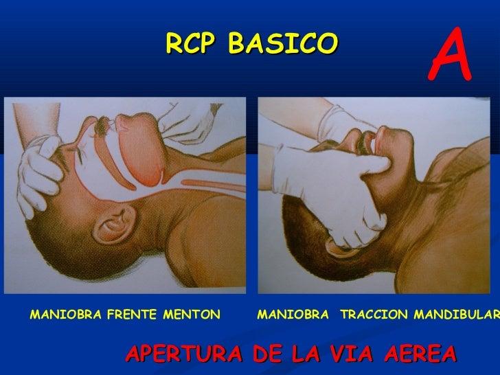 """B              RCP BASICO             VENTILACIONVerificar:– V - E - S– No ventila:   """" Paro Respiratorio""""Ventilaciones de..."""