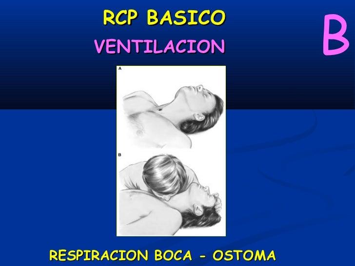 RCP BASICO    VENTILACION                               BRESPIRACION BOCA-DISPOSITIVO