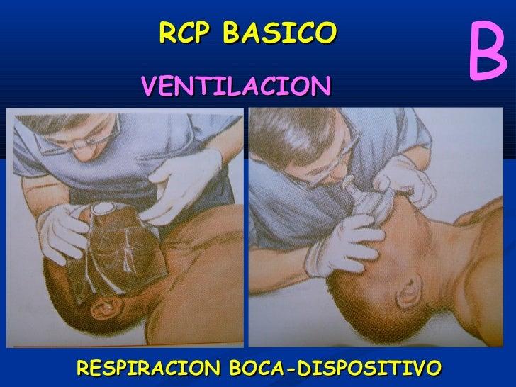 B     RCP BASICO    VENTILACIONRESPIRACION BOCA-DISPOSITIVO