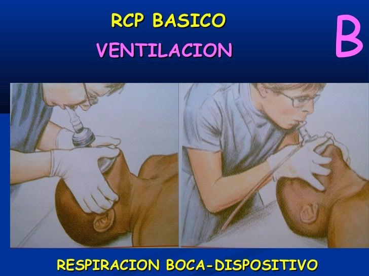 RCP BASICO                                           BVentilación con Balón Autoinsuflable                     Ventilador...
