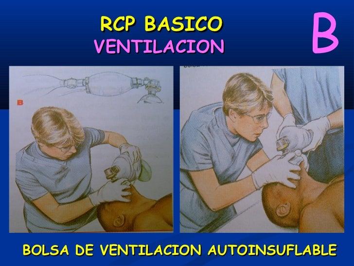 RCP BASICO          VENTILACION             BBOLSA DE VENTILACION AUTOINSUFLABLE          MANIOBRA DE SELLICK
