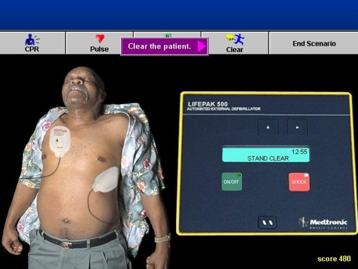 RCP BASICO ADULTOS   Activo el SEM en paciente inconsciente   VOLUMEN RESPIRATORIO 1 seg inspiración normal   DETECCION...