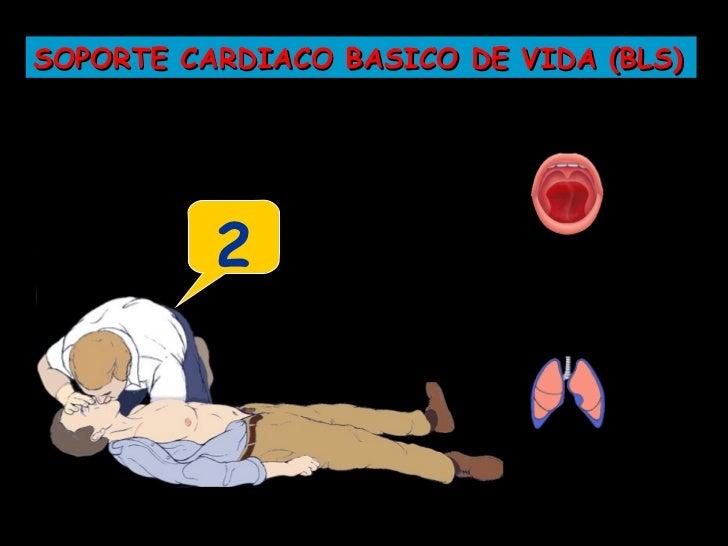 SOPORTE CARDIACO BASICO DE VIDA (BLS)             Iniciar           1           Compresiones