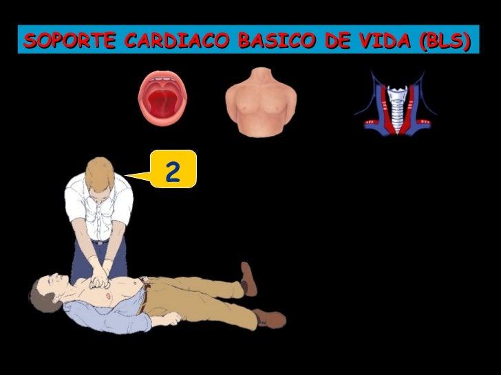 SOPORTE CARDIACO BASICO DE VIDA (BLS)           ...13
