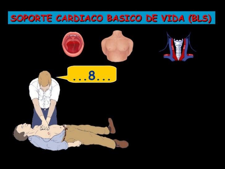 SOPORTE CARDIACO BASICO DE VIDA (BLS)           30
