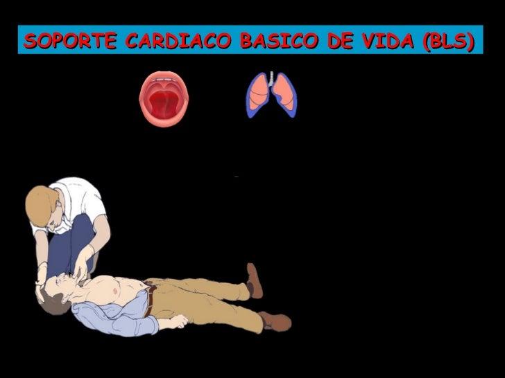 SOPORTE CARDIACO BASICO DE VIDA (BLS)