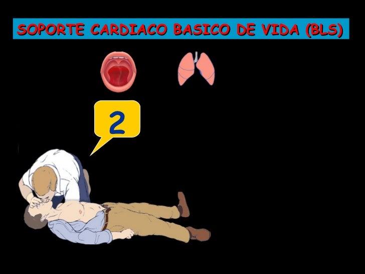 """SOPORTE CARDIACO BASICO DE VIDA (BLS) Aplico     Cargando         Oprimo el      Descarga a la   1 """"EstoyPaletas    Desfib..."""
