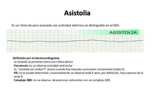 Asistolia Es un ritmo de paro asociado con actividad eléctrica no distinguible en el EKG. Definición por el electrocardiog...