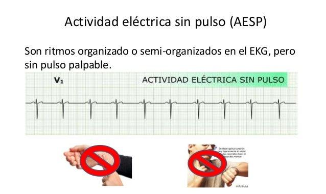 Actividad eléctrica sin pulso (AESP) Son ritmos organizado o semi-organizados en el EKG, pero sin pulso palpable.