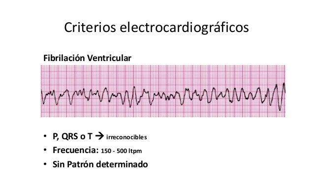 Criterios electrocardiográficos • P, QRS o T  irreconocibles • Frecuencia: 150 - 500 ltpm • Sin Patrón determinado Fibril...