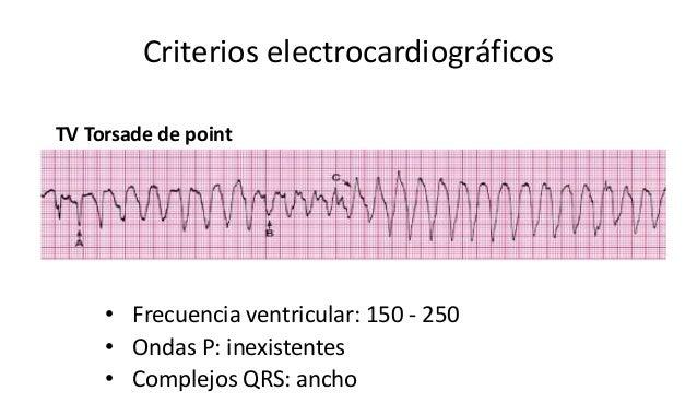 Criterios electrocardiográficos • Frecuencia ventricular: 150 - 250 • Ondas P: inexistentes • Complejos QRS: ancho TV Tors...