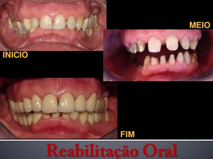 MEIO<br />INÍCIO<br />FIM<br />Reabilitação Oral<br />