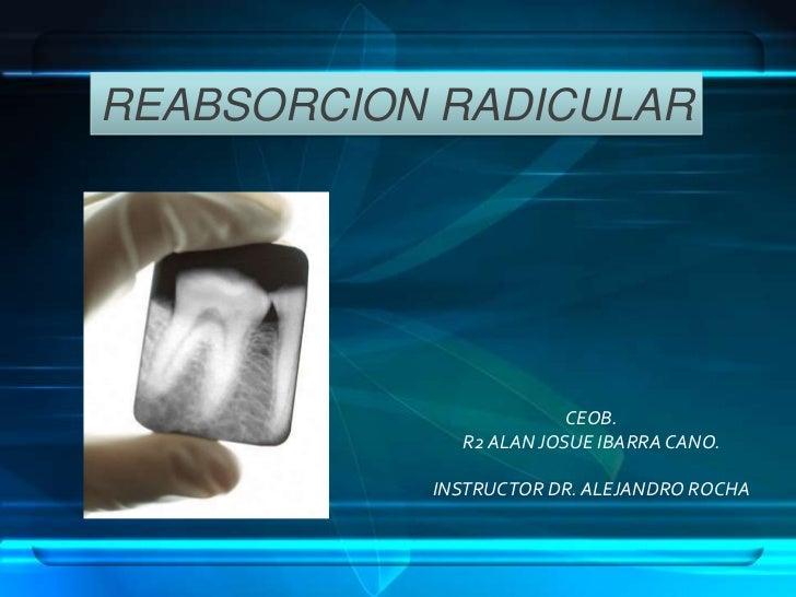 REABSORCION RADICULAR                        CEOB.             R2 ALAN JOSUE IBARRA CANO.           INSTRUCTOR DR. ALEJAND...