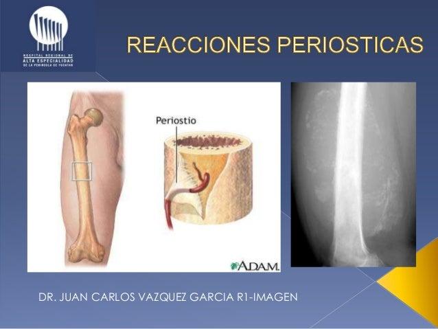 DR. JUAN CARLOS VAZQUEZ GARCIA R1-IMAGEN
